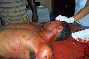 Jermaine Springer brutalised by Guyana Police