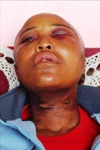 Millicent Gaika rape victim in south africa