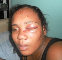 abused woman in Guyana