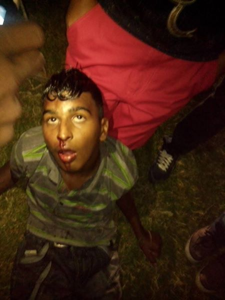 east indian boy beaten & tortured by guyana police force